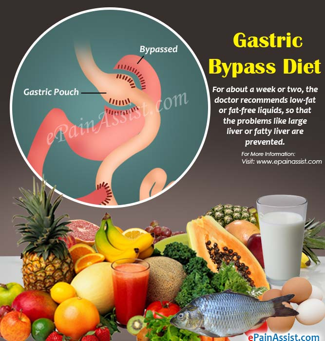 Pre Post Gastric Bypass Diet Foods To Eat Foods To Avoid After