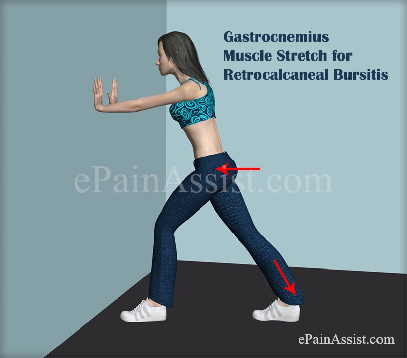 Gastrocnemius Muscle Stretch for Retrocalcaneal Bursitis or Achilles Tendon Bursitis