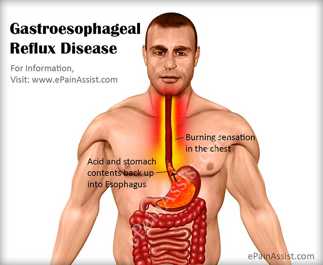 Is shortness of breath a symptom of esophageal reflux disease?