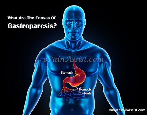 What Are The Causes Of Gastroparesis?