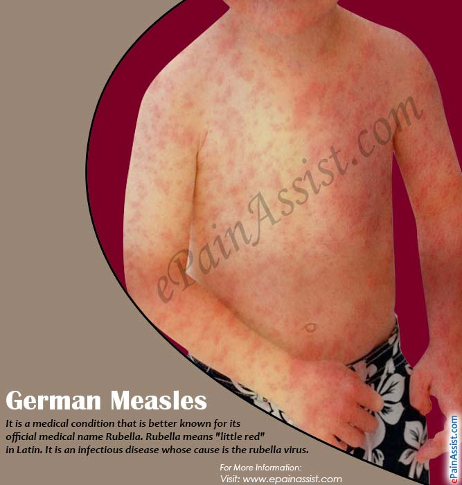 German Measles or Three-Day Measles