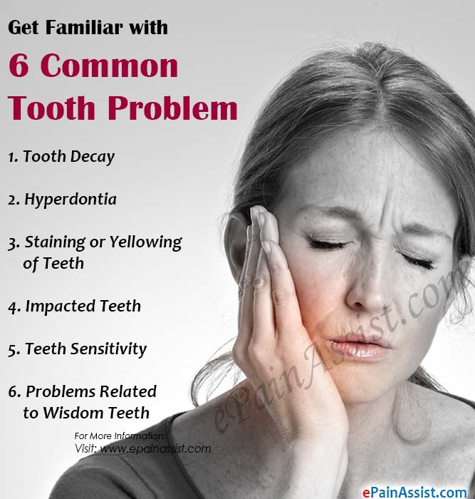 Get Familiar with 6 Common Tooth Problems