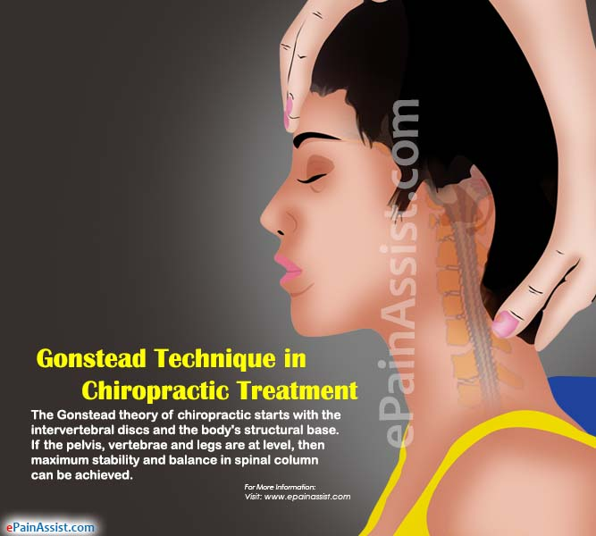 Gonstead Technique in Chiropractic Treatment