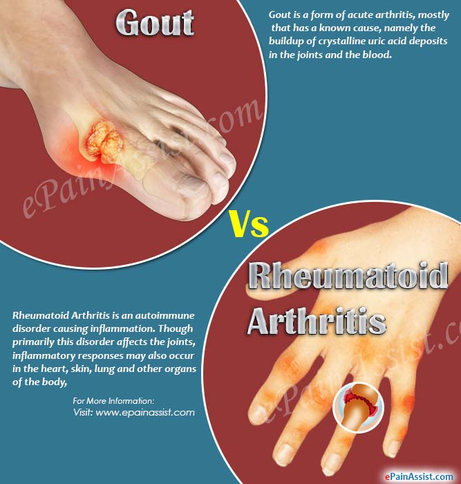 gout pain in hip joint best cherry juice brand for gout how can i lower my uric acid levels naturally
