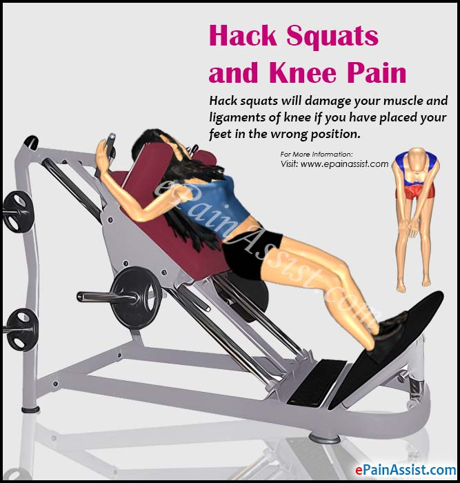 Hack Squats and Knee Pain