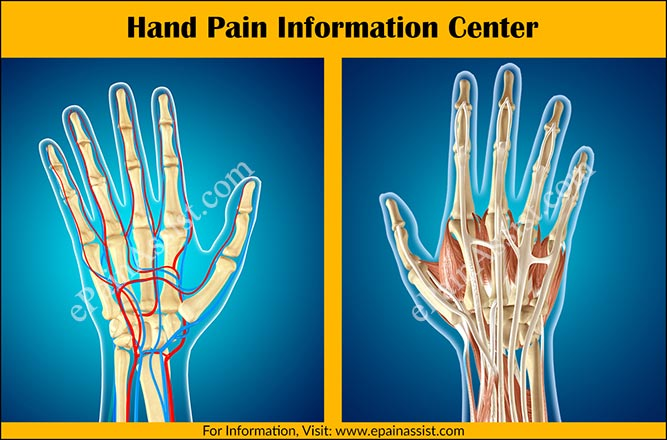 Hand Pain Information Center