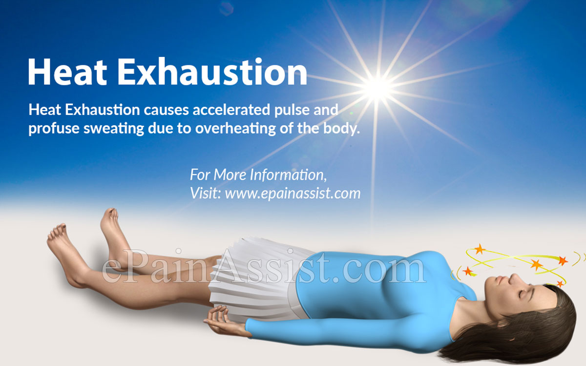 Heat Exhaustion: Definition, Causes, Who is at Risk, Symptoms, Diagnosis, Treatment, Prevention