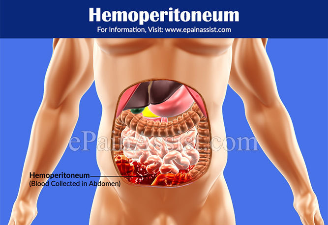 What Causes Hemoperitoneum?