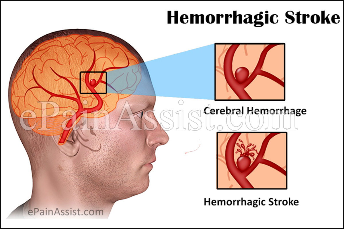 Hemorrhagic Stroke: Symptoms, Treatment, Recovery, Survival, Causes, Types, Prognosis