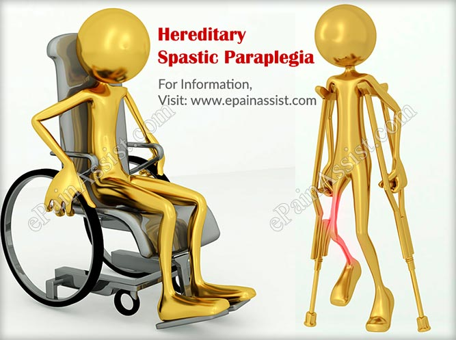 Symptoms Of Uncomplicated Or Pure Type Of Hereditary Spastic Paraplegia