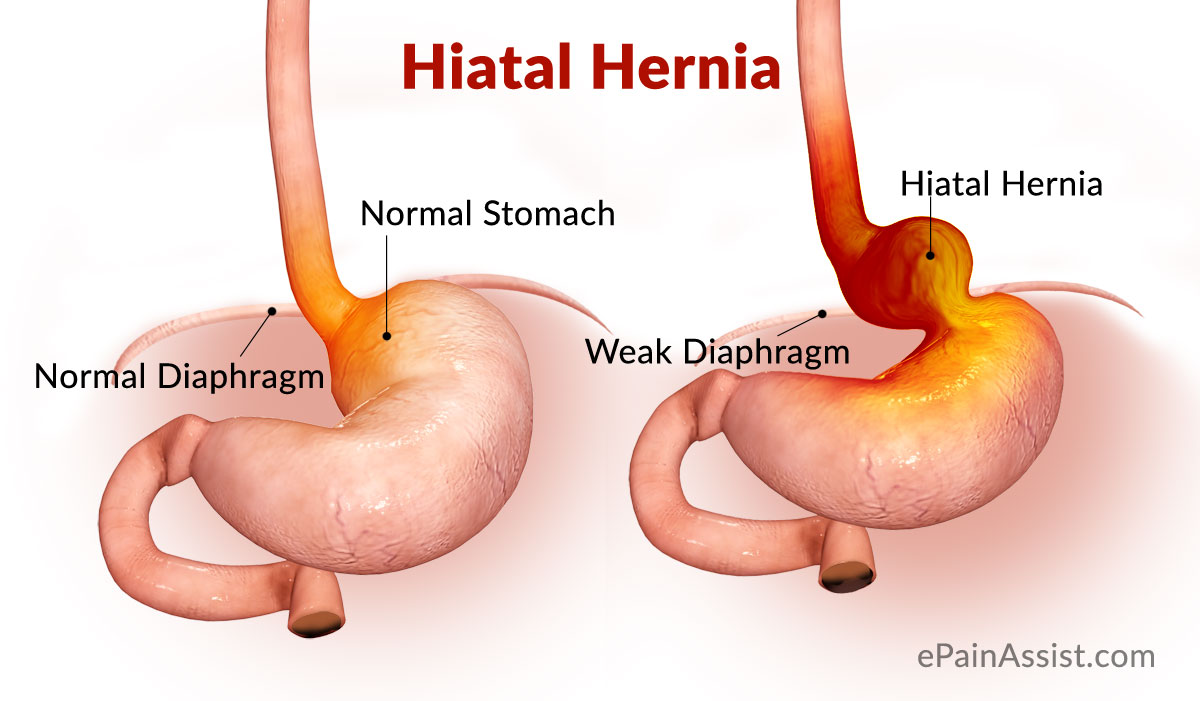 hiatal hernia or hiatus hernia|causes|risk factors|signs|symptoms, Human Body