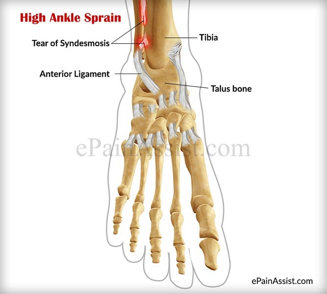 What is High Ankle Sprain or Syndesmotic Ankle Sprain?