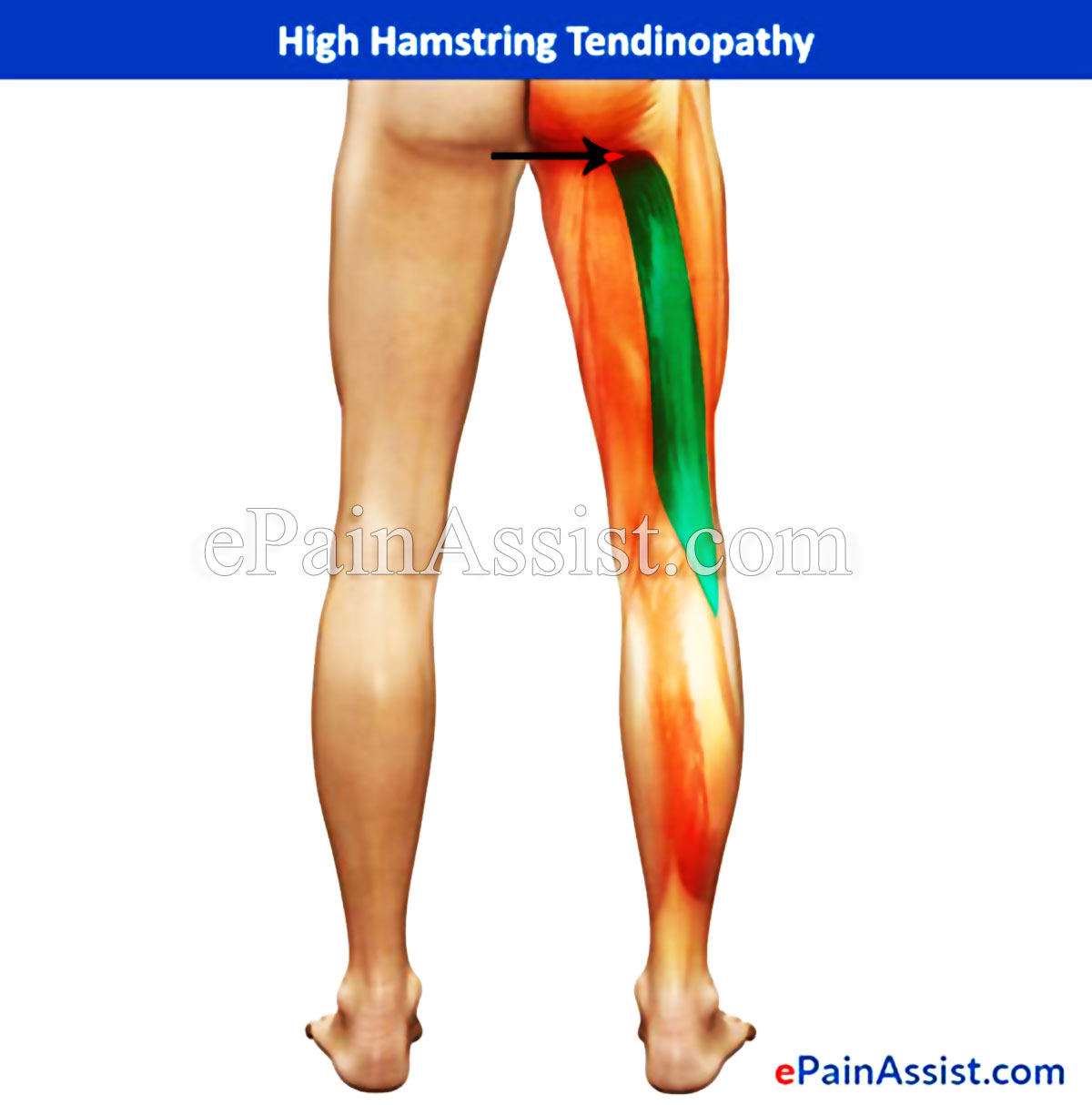 High Hamstring Tendinopathy