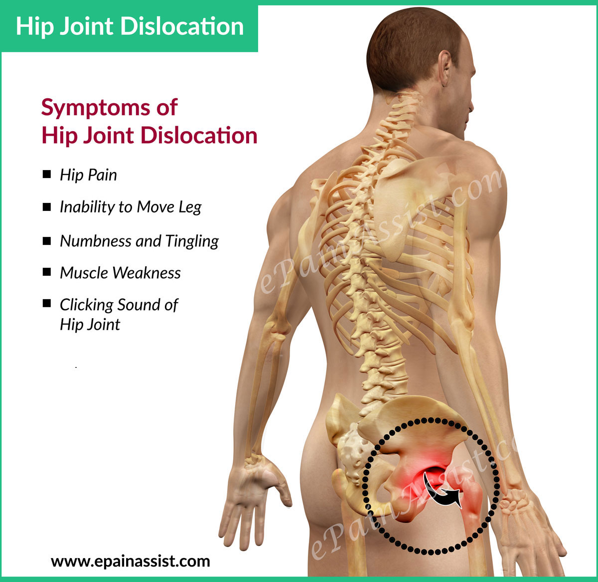 What Is Hip Dislocationtypes Treatment Exercises For Hip Dislocation