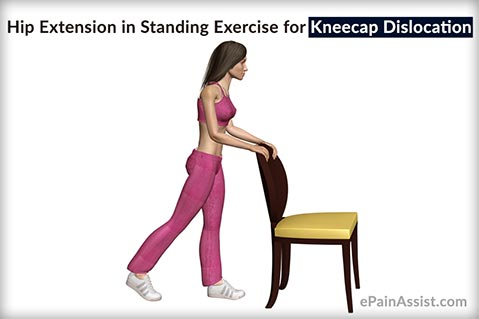Hip Extension in Standing Exercise for Kneecap Dislocation or Patellar Dislocation