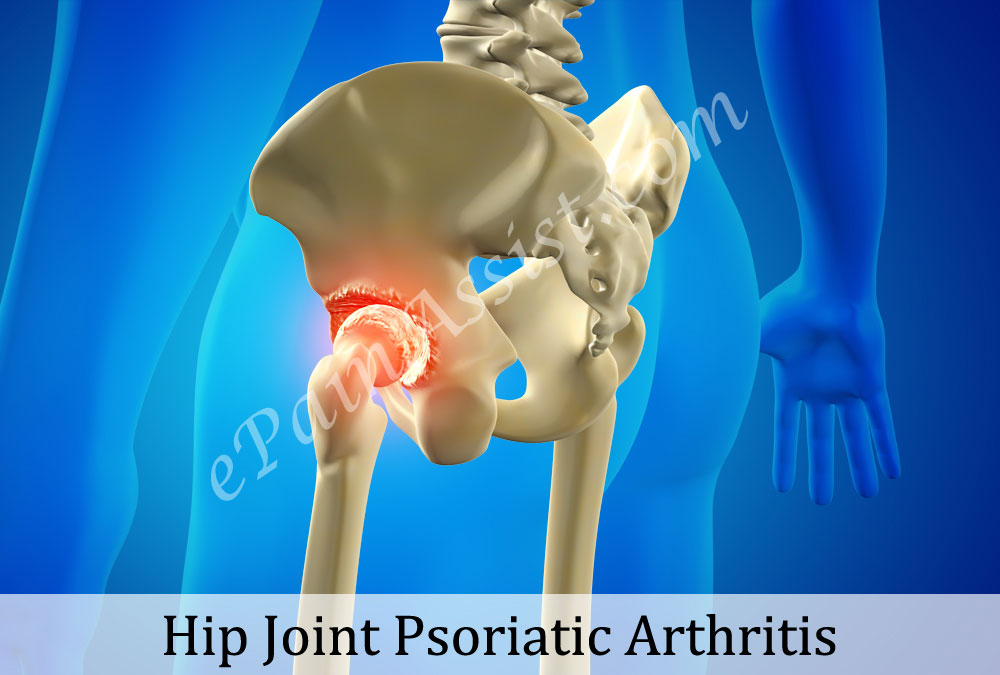 Hip Joint Psoriatic Arthritis