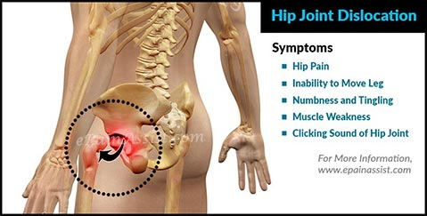 Symptoms of Hip Joint Dislocation