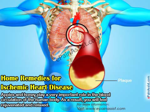 Ischemic Heart Disease: Home Remedies