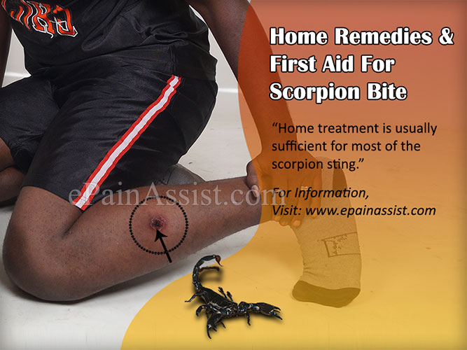 Home Remedies And First Aid For Scorpion Bite