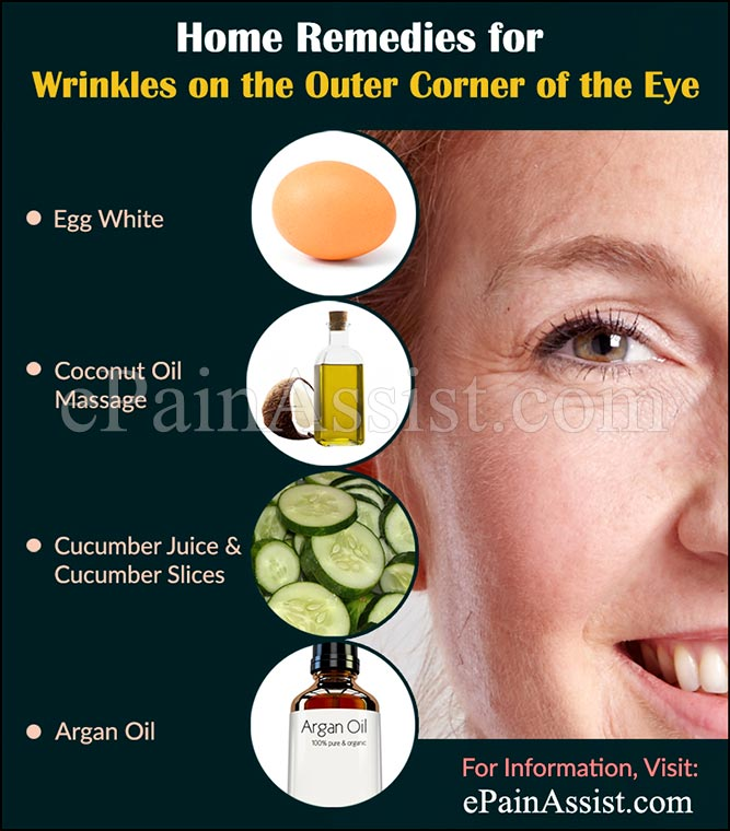 Home Remedies and Treatments to Get Rid of Crow's Feet or Wrinkles on the Outer Corner of the Eye?