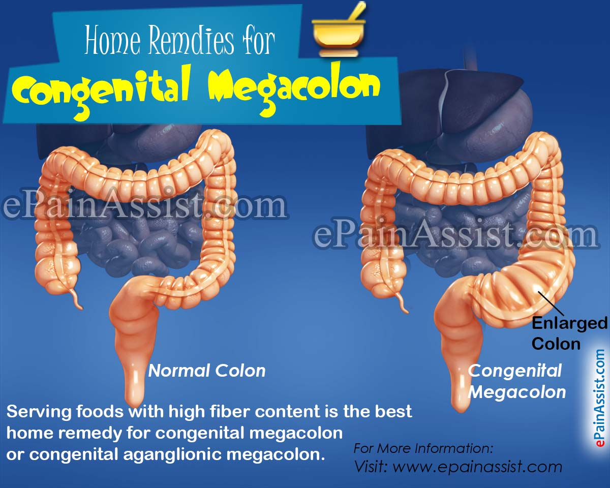 Home Remedies for Congenital Megacolon or Congenital Aganglionic Megacolon