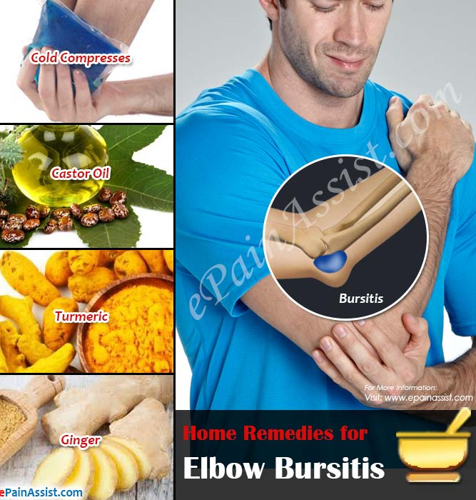 Home Remedies for Elbow Bursitis