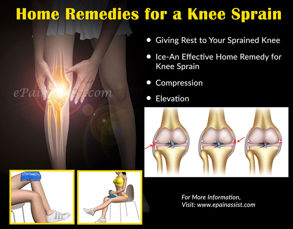 Home Remedies and Exercises for Knee Sprain