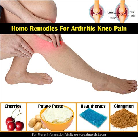 Home Remedies for Knee Arthritis!