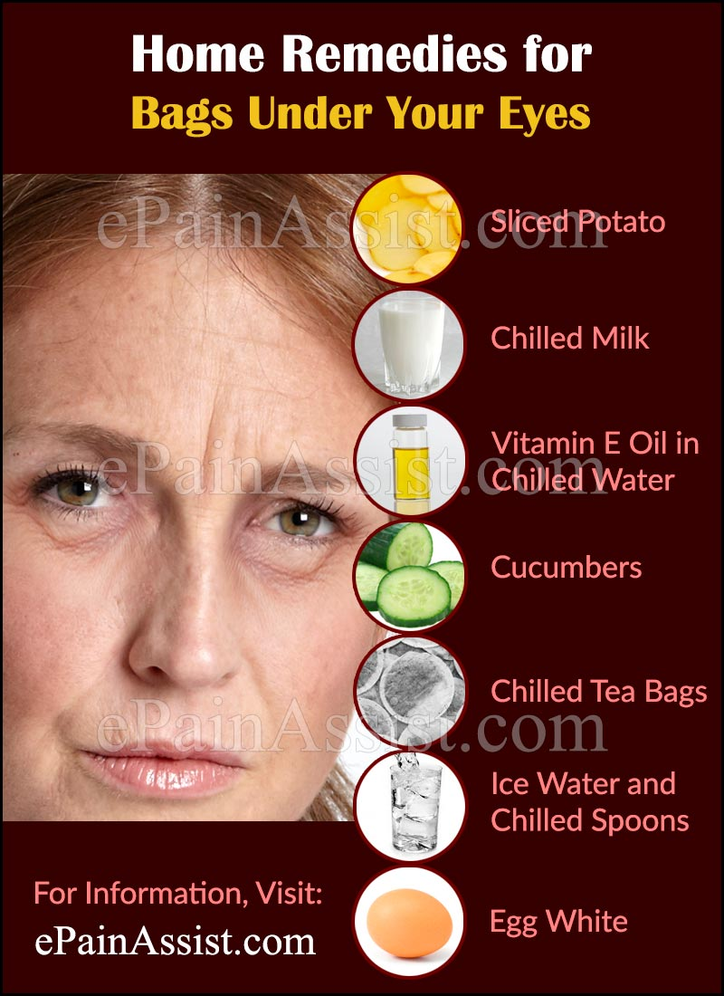 Home Remedies for Bags Under Your Eyes