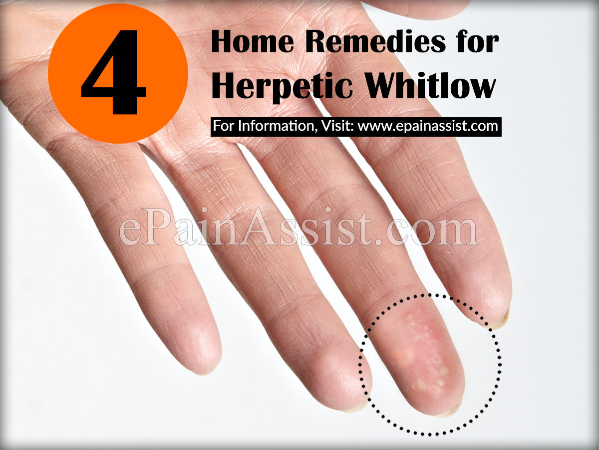 herpetic whitlow or whitlow finger recovery prevention home remedies rh epainassist com Herpetic Whitlow Finger Infection Herpetic Whitlow Finger Tip