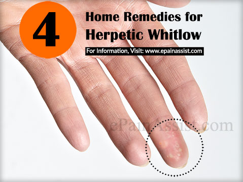Home Remedies for Herpetic Whitlow or Whitlow Finger