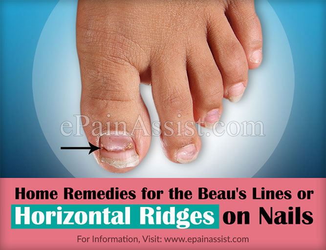 Beau\'s Lines or Horizontal Ridges on Nails