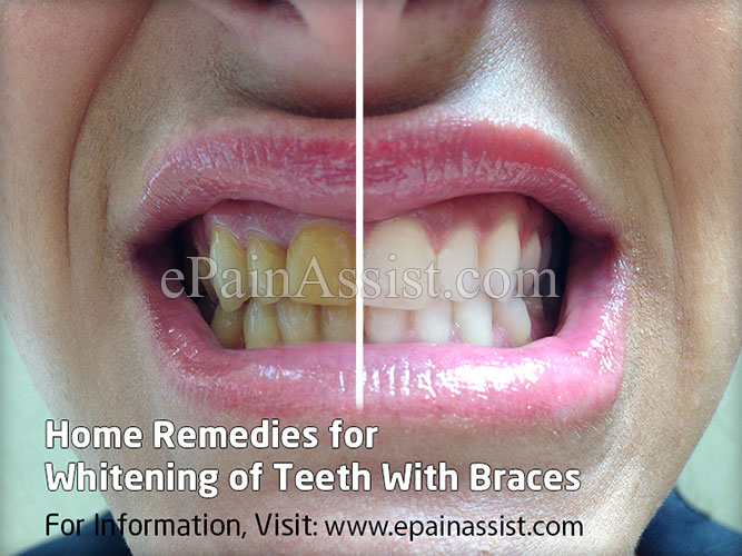 Home Remedies For Whitening Of Teeth With Braces
