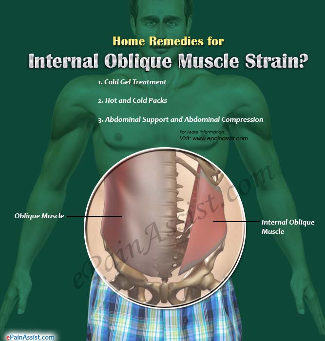 Home Remedies for Internal Oblique Muscle Strain?