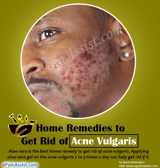 Home Remedies to Get Rid of Acne Vulgaris