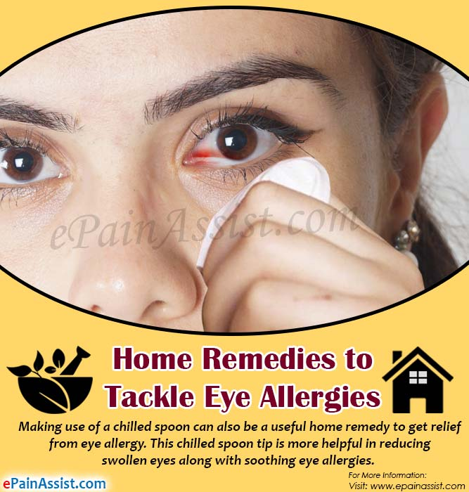 Home Remedies to Tackle Eye Allergies