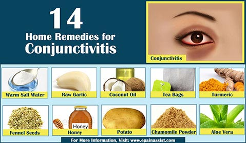 Home Remedies for Pink Eye or Conjunctivitis