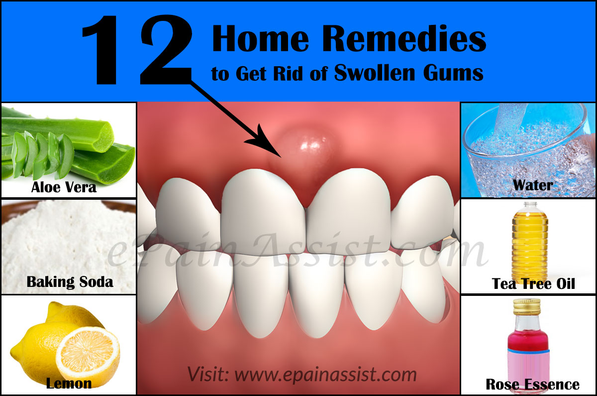 How to remove inflammation of the gums 81