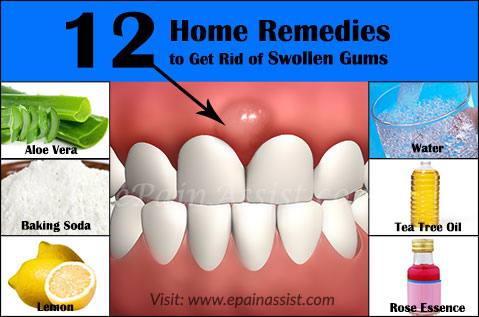 Home Remedies to Get Rid of Swollen Gums