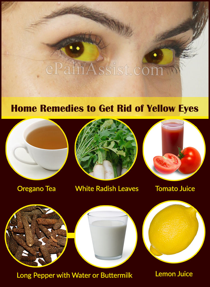 What Causes Yellow Eyes And Home Remedies To Get Rid Of It - Best home remedies for jaundice its causes and symptoms
