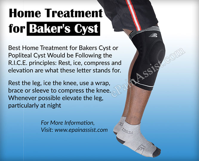 Home Treatment for Baker's Cyst or Popliteal Cyst