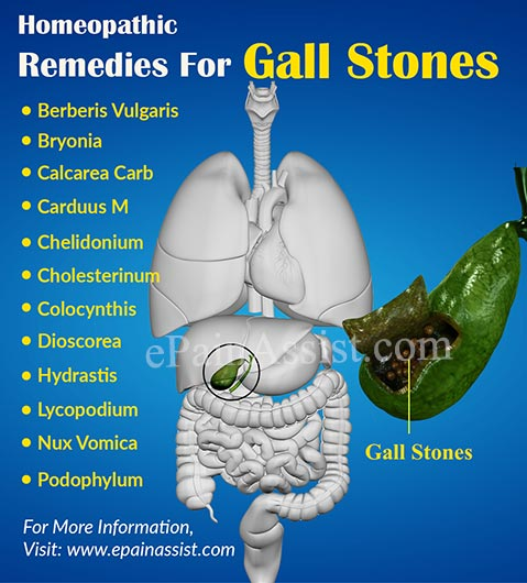 Homeopathic Remedies For Gall Stones or Cholelithiasis