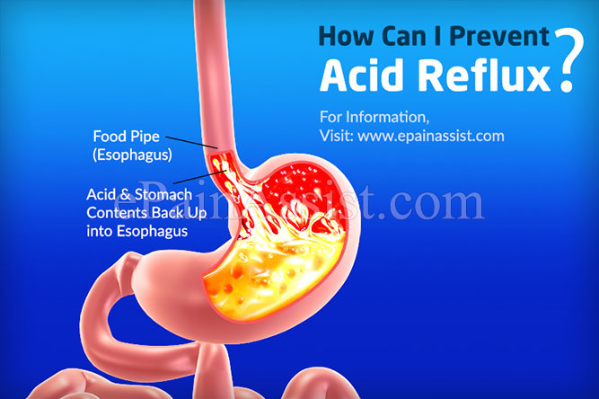 How Can I Prevent Acid Reflux?