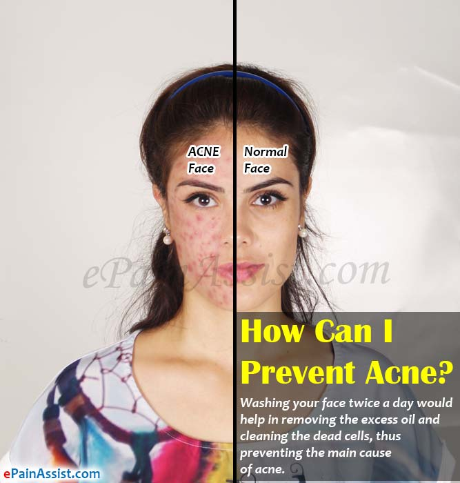 How Can I Prevent Acne?