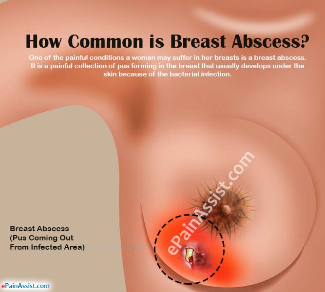 Breast pain causes and treatment