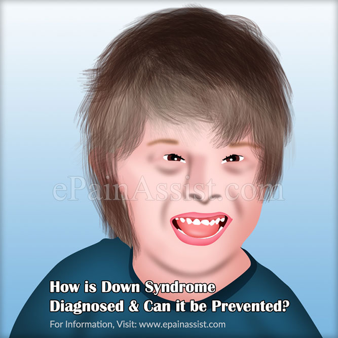How is Down Syndrome Diagnosed & Can it be Prevented?