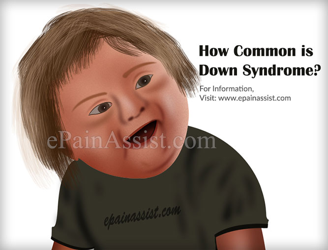 How Common is Down Syndrome?