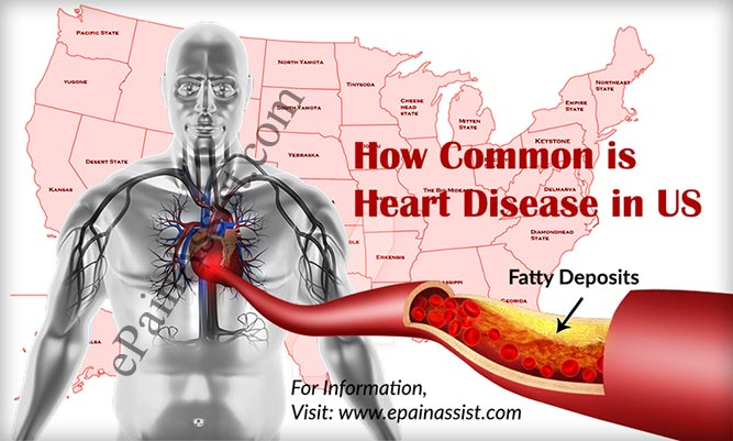 How Common is Heart Disease in United States