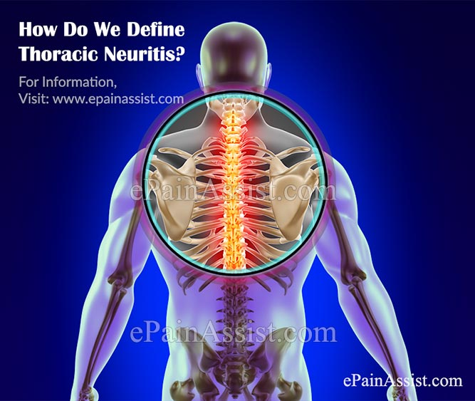 How Do We Define Thoracic Neuritis?