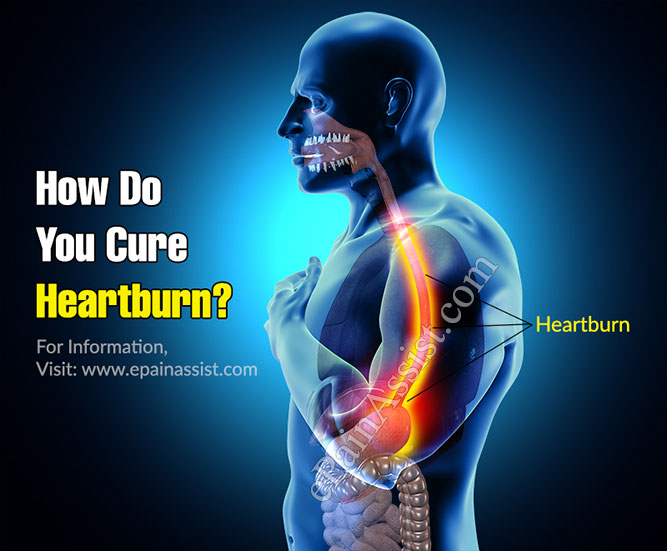 How Do You Cure Heartburn?